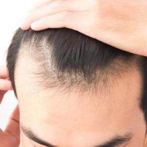 Biostimolazione del cuoio capelluto